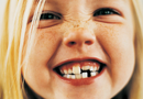 Correggere i denti storti