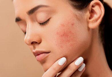 Gli effetti psicologici dell'acne giovanile